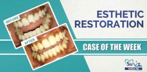 Esthetic composite restoration