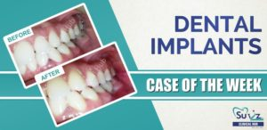 Replacement of a missing tooth using dental implant