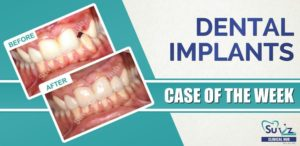 Replacement of a fractured tooth with an immediate implant