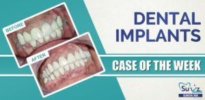 Full Mouth Rehabilitation Using Dental Implants