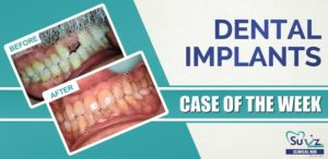 Dental Implants: Implant in the esthetic zone