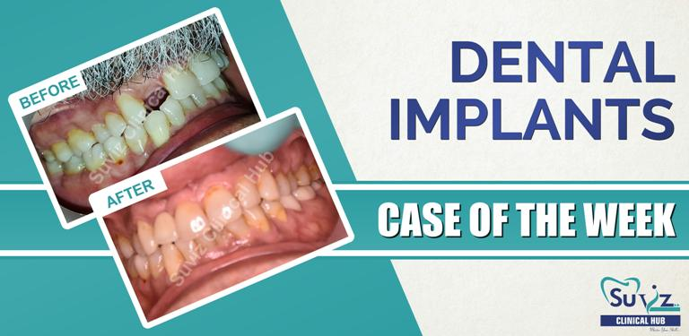 Dental Implants: Implant in the esthetic zone