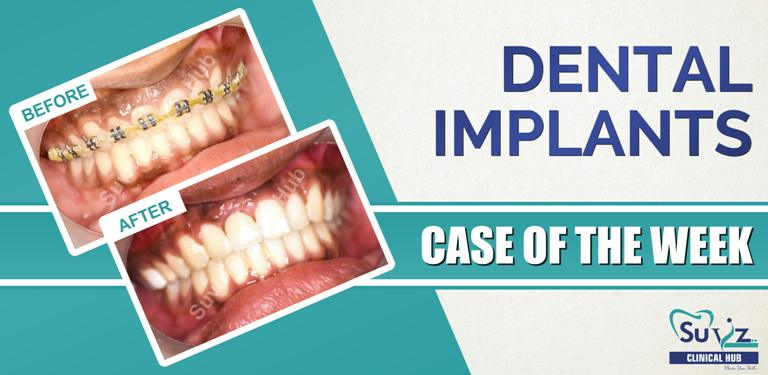 Dental Implant in the esthetic region following autogenous block graft
