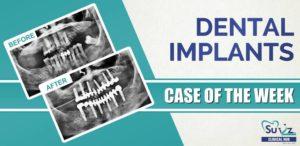 Full mouth implant rehabilitation