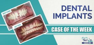 Midline Diastema Correction