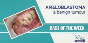 Ameloblastoma a Benign Tumour