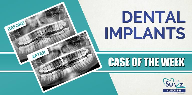 Rehabilitation of discolored tooth